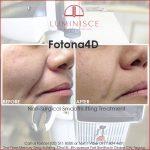 Fotona 4D by Luminisce for Aging Skin