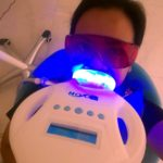 My Laser Teeth Whitening Experience at Affinity Dental Clinic in Makati